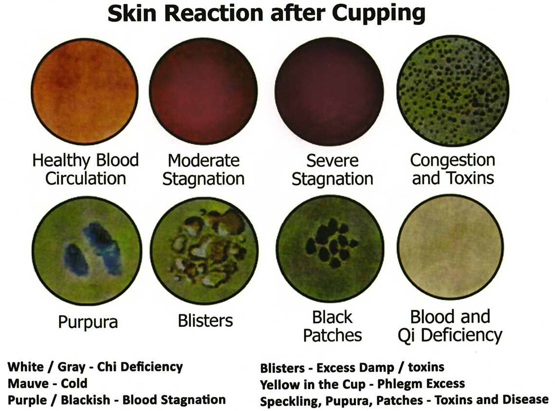 Cupping Mark Chart